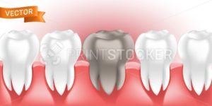 White healthy and clean human teeth in the gum with tooth decay or caries, 3D style vector illustration, can be used as dental and medicine concept element in web design, advertising and print layout - PrintStocker.com