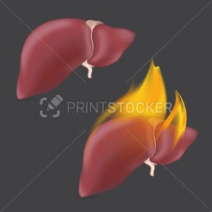 Burning anatomical liver. Realistic human organ of internal digestion system in flame. Vector illustration - PrintStocker.com