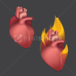 StockBurning anatomical heart. Realistic human organ of internal blood circulation system in flame. Vector illustration - PrintStocker.com