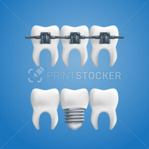 Denture concept – healthy teeth with a dental implant and braces on top of them. Vector illustration of human teeth in a 3d realistic style isolated on a blue background - PrintStocker.com