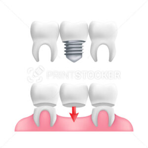 Denture concept – healthy teeth with fixed dental bridgework and implants. Vector illustration of human teeth in a 3d realistic style isolated on a white background - PrintStocker.com