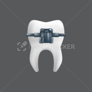 A tooth with a metal brace. Orthodontic treatment concept. 3d realistic vector illustration of a dental ceramic model isolated on a grey background - PrintStocker.com