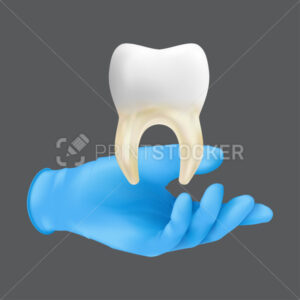 Dentist hand wearing blue protective surgical glove holding a ceramic model of the tooth. 3d realistic vector illustration of bone and soft tissue grafting concept isolated on a grey background - PrintStocker.com