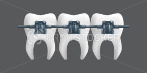 Teeth with metal braces. Orthodontic treatment concept. 3d realistic vector illustration of a dental ceramic model isolated on a grey background - PrintStocker.com